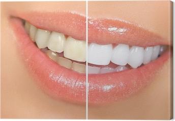 Canvas Het bleken van tanden.