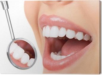 healthy teeth Canvas Print