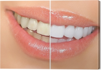 teeth whitening Canvas Print