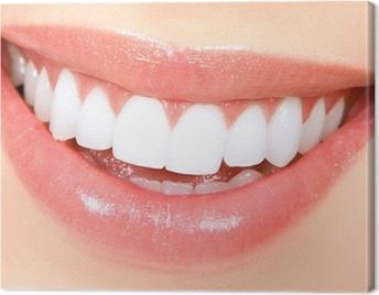 Woman teeth Canvas Print