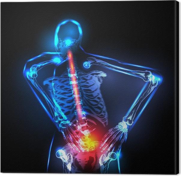 Cuadro en Lienzo Espina dorsal humana en vista de rayos x, dolor de ...