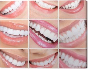 valkoiset hampaat dating