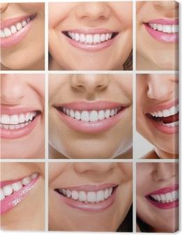 Leinwandbild Zähne Collage von Menschen lächelt