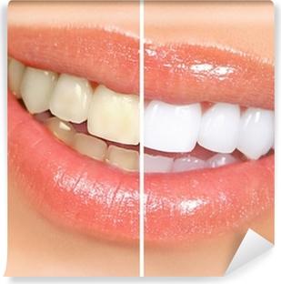 Mural de Parede em Vinil teeth whitening