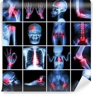 Papier peint vinyle X-ray partie multiple de l'homme et de l'arthrite, les maladies multiples