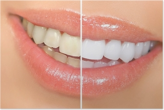 Póster teeth whitening