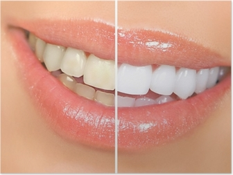 Poster Het bleken van tanden.