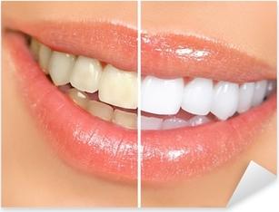 Sticker Pixerstick Blanchiment des dents