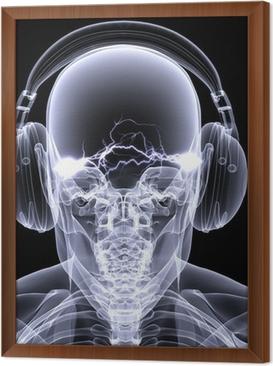 https://t1.pixers.pics/img-1fb6f67c/tableaux-encadres-skeleton-x-ray-dj-3.jpg?H4sIAAAAAAAAA3WOUW6EMAxErxMkgg2JE-AA-7tHQCGELS0QlGTLak_foKqflWV5PJI9D557NLMD6_bkAmzLNK0O5mXNW-yDi8vbMSyJsOizuzLErPy3Czb4g3GikpMoFVJuXfSnyYebCV_sI6Uj9gBRVMfyyt_ysBHsFqHBWgEqIE3K1MJNTS2awY_8WH3aPQ9mM3wK7uRjMG9_Gq7xVSNWx_4o8ariD00ilvJCSmHZWGb0OT2xz-NRwD8EvxryFdzuIAm0BCFBdZc13O6StBRSdYNF004NiRalo26mVneiEaPVnZ7RdFjllB9pbHRaQAEAAA==