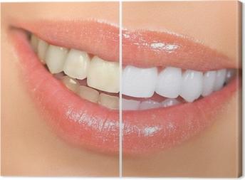 Tableau sur toile Blanchiment des dents