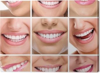 Tableau sur toile Dents collage de personnes sourires