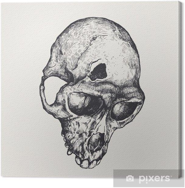 Cuadro en Lienzo Monos fractura de cráneo. ilustración vectorial - Texturas