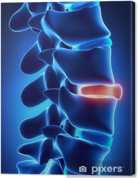 Leinwandbild Brochen Scheibe Röntgen - Gesundheit & Medizin
