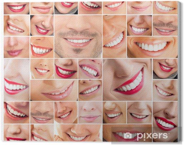 Leinwandbild Gesichter der lächelnden Menschen im Set. Gesunde Zähne. Lächeln - Gruppen und Menschenmengen