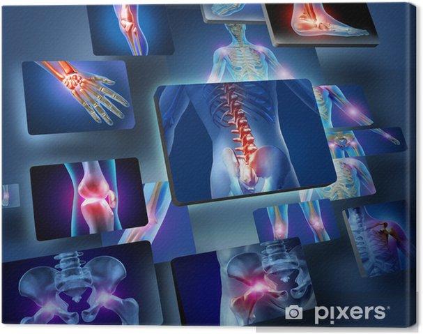 Leinwandbild Menschliche Gelenke Konzept - Gesundheit & Medizin