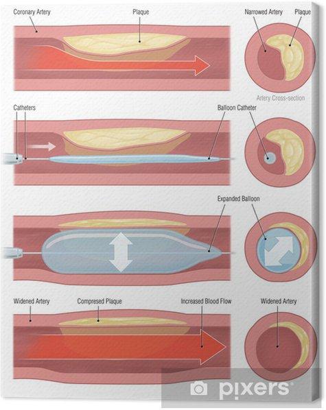 Obraz na płótnie Balon rozszerzenie tętnicy wieńcowej - Części ciała