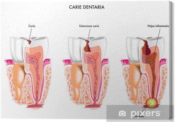 Obraz na płótnie Próchnica zębów - Zdrowie i medycyna