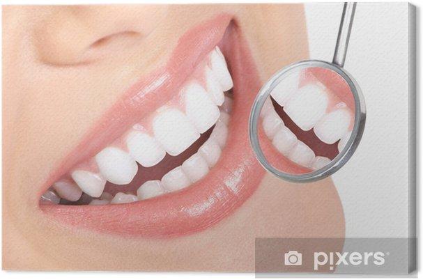Obraz na płótnie Zdrowe zęby - Zdrowie i medycyna