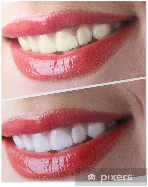 Plakát Ženy úsměv se zuby: bělení - bělení, - Jiné objekty