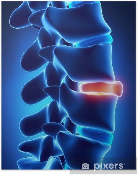 Poster Brochen Scheibe Röntgen - Gesundheit & Medizin