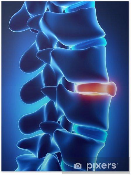 Poster Hernie discale dans x-ray - Santé et médecine