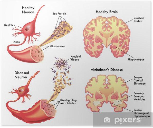 Poster Ziekte van Alzheimer - Gezondheid en Geneeskunde