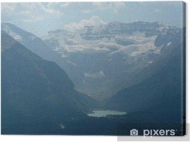 Tableau sur toile Une vue sur le lac louise - Amérique