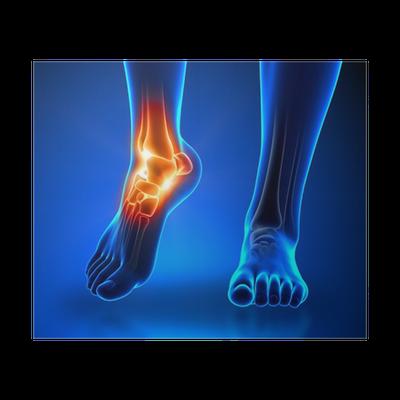 Artritida: příznaky, léčba (zánět kloubu) - byroncaspergolf.com