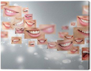 Canvastavla Ansikten av leende människor i set. Friska tänder. Le