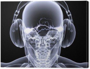 Canvastavla Skelett X-Ray - DJ 3