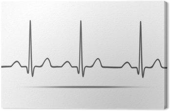 Obraz na Płótnie EKG z cienia. Wektor