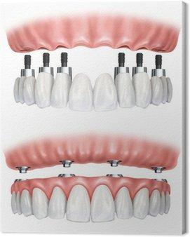 Obraz na Płótnie Protezy zębowe