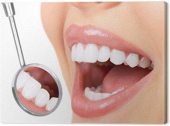 Obraz na Płótnie Zdrowe zęby